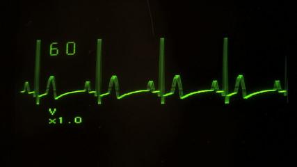 EKG defibrillator heart flatlines with audio - HD