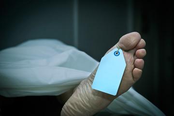 Terminal Athlete's Foot