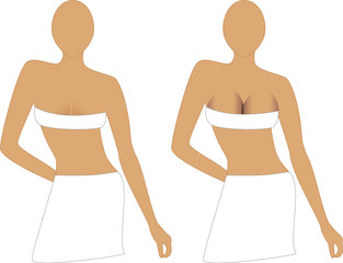 Before and After Breast Augmentation Implants.