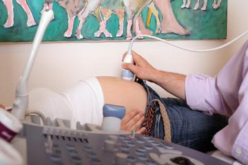 Ultraschalluntersuchung einer schwangeren Frau