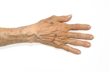 A heavily lined elderly woman's hand