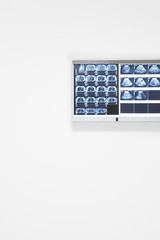 X-rays and ultra sound results hanging on wall