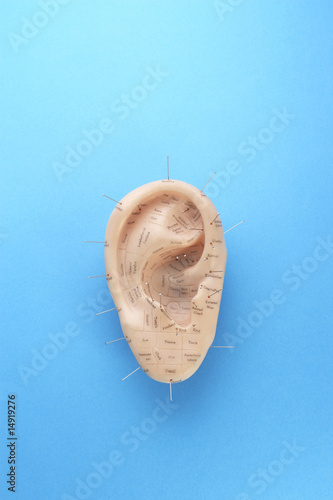 Acupuncture pins in model ear