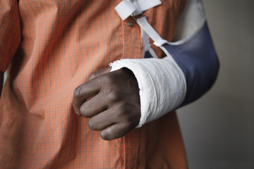 Man with broken arm, close-up of cast