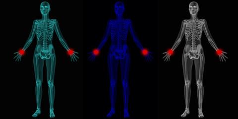 Anatomischer Körper mit Andeutung von Gelenkproblemen