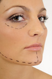 woman before plastic surgery, face lift