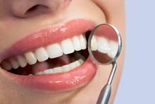 Mooie tanden