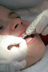 einsetzen einer festen Zahnspange