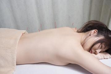 女性の背中に鍼