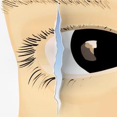 occhio con fessura