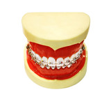 Human tooth jaw with braces poster