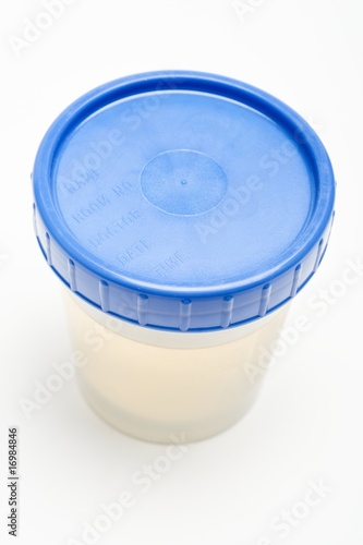 Urine sample in plastic pot