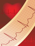 Electrocardiogram Paper with Normal ECG Graphic Line poster