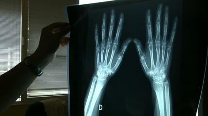 Radiografia de manos