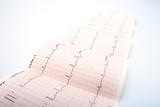 Electrocardiogram, waveform from EKG test poster