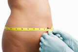 Female mid section being measure before liposuction poster