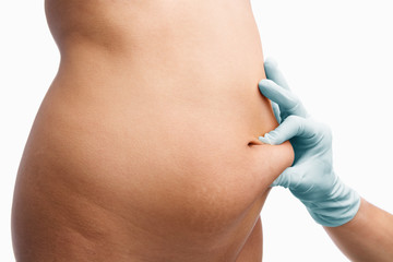 Female mid section pinched before liposuction