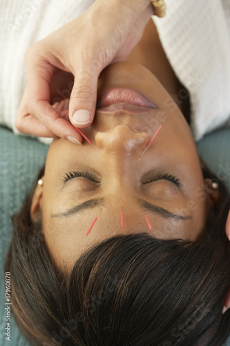 Acupuncture needles in African woman's face