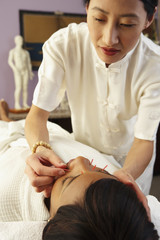 African woman receiving Acupuncture treatment