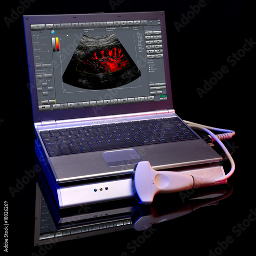 Ultrasound devices on a black background