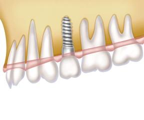 implantation (white)