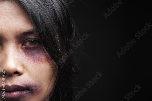 Domestic violence victim - 18104227