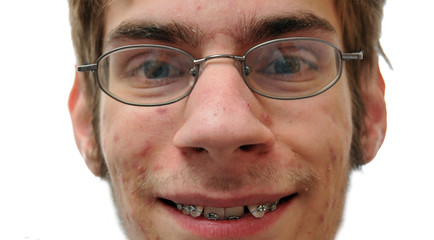 Man smiling showing his braces
