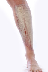 Schuppenflechte am Bein