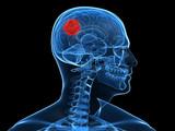 menschliches Gehirn mit Tumor poster