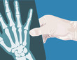 Illustration of a hand holding a X-ray film