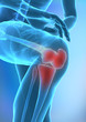 Human knee injury concept