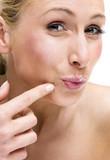 spot - pimple poster
