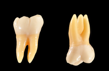Upper and lower molar teeth isolated on black