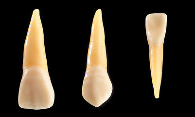 Front teeth isolated on black