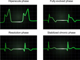 Processe of miocardial infarction on four phases, vector