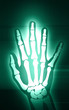 Illustration of X-ray film of hand