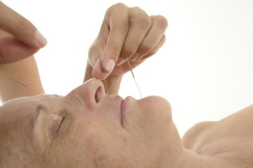 Acupuncture in Senior