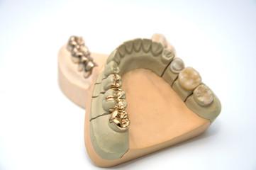 Zahnersatz -Teilkronen