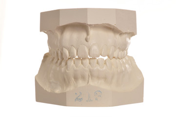Dental model of human teeth on white