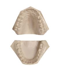 White stone models of teeth