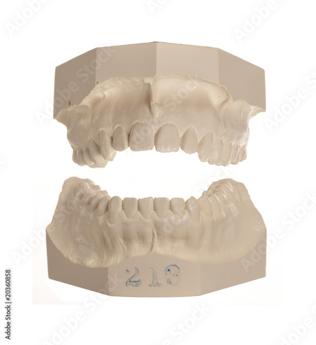 Dentist models of teeth