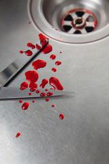 omicidio