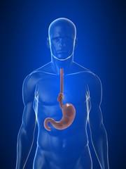Magenknoten