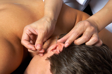 acupuncture of  ear