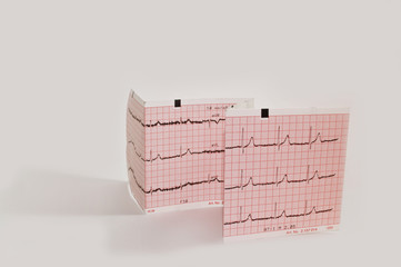 electrocardiogram isolated