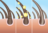 Illustration of three phase of hair cure, vector