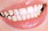 Close-up of patient s open mouth before oral inspection poster