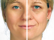 Correction of wrinkles - half face - 22266465