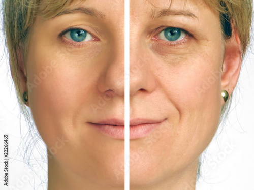 Correction of wrinkles - half face