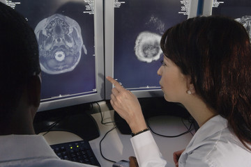 Hispanic female doctor pointing at brain scans